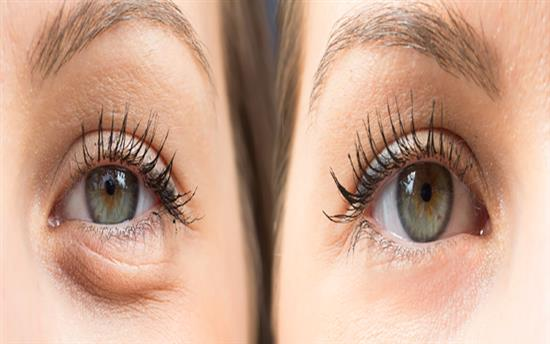 lower eyelid laser blepharoplasty