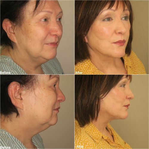 Neck lift Facelift chin implant and chin liposuction