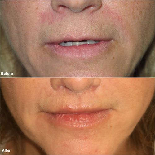 Before and after lip lift by Jag Chana