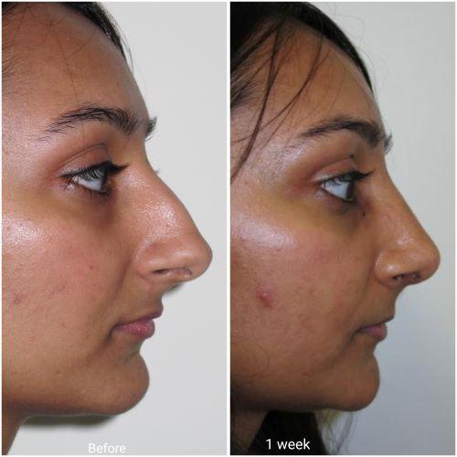 Ultrasonic rhinoplasty result at 1 week by Jag Chana