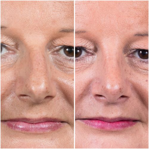 Ultrasonic rhinoplasty to straighten a deviated nose