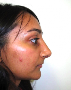 Post Rhinoplasty nose surgery