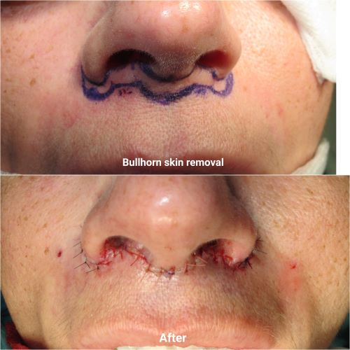 On table before and after bullhorn lip lift