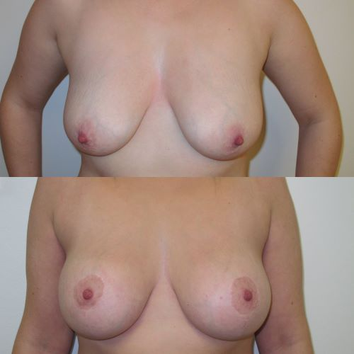 breast uplift with implants by Jag Chana