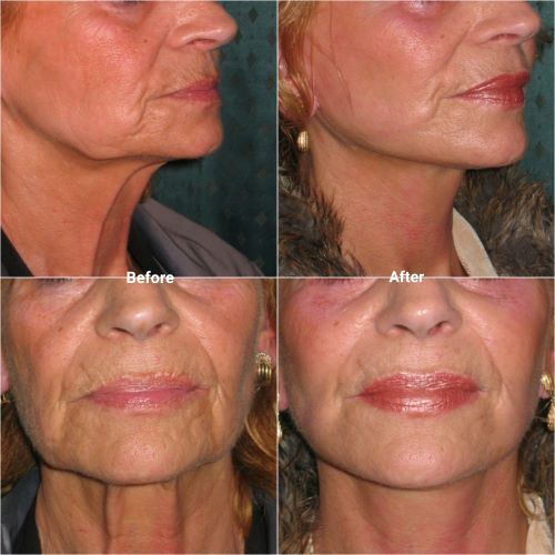 facelift and necklift before and after